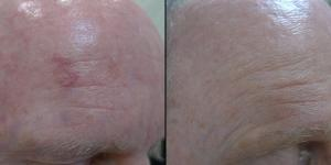 Sun damage repair before and after.